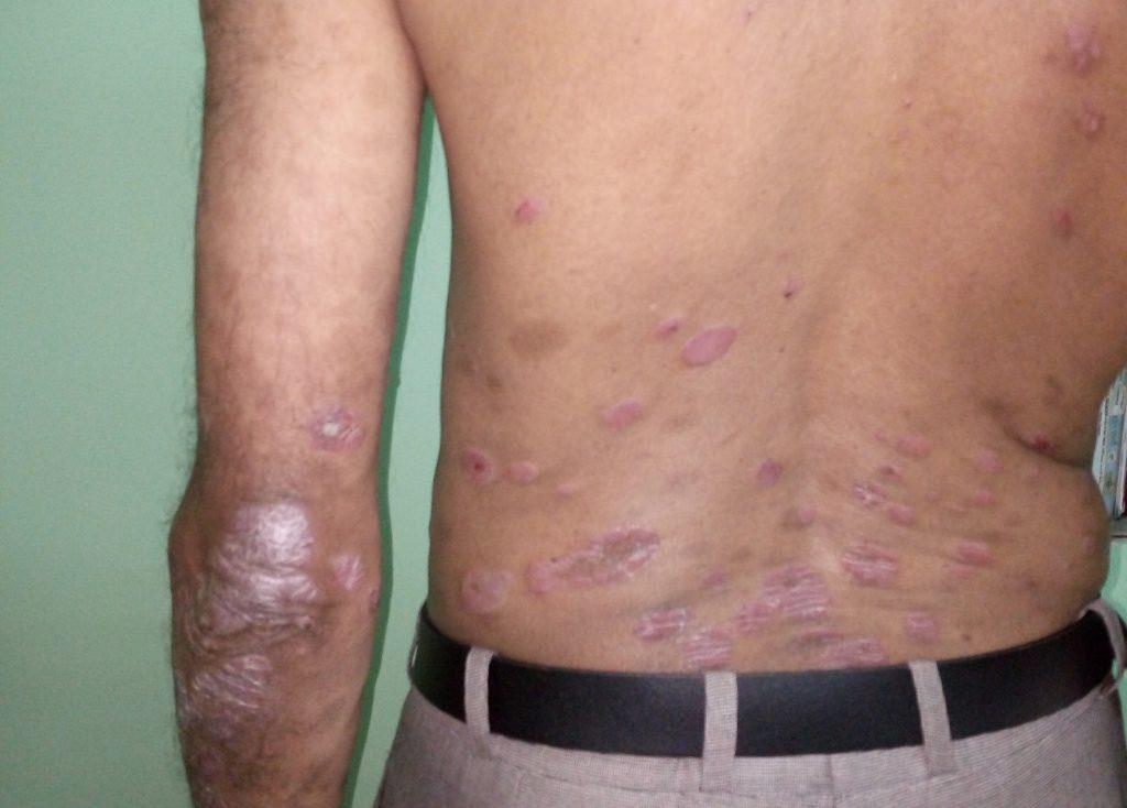 Psoriasis Treatment Plaque