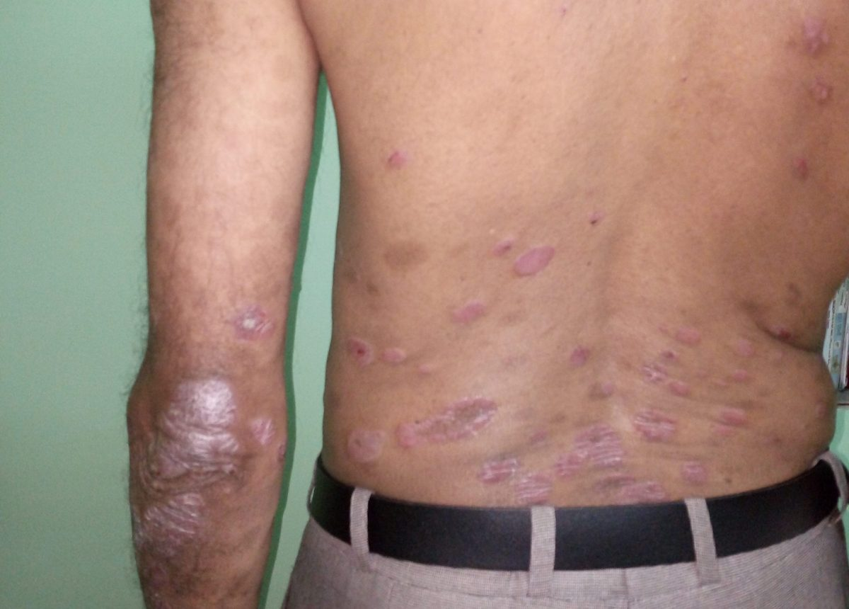 15 things to know about psoriasis
