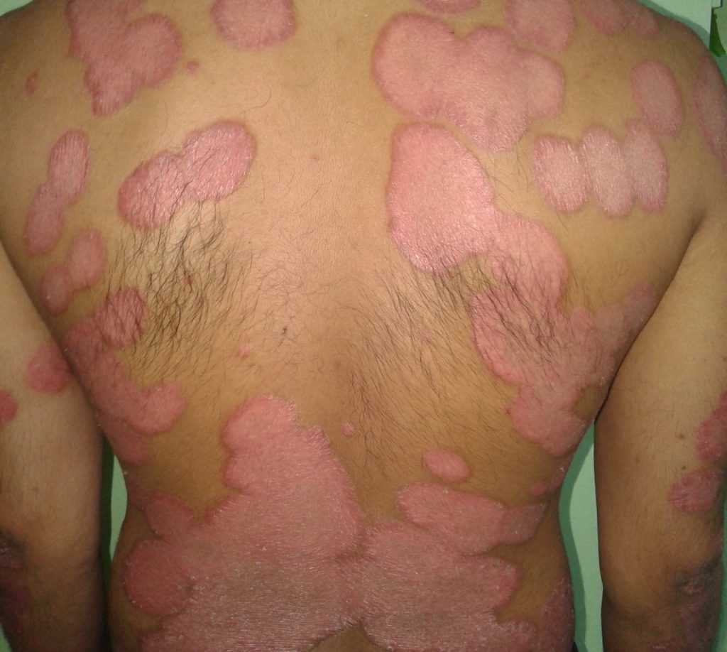 Psoriasis Symptoms, Types and Ayurveda Treatments