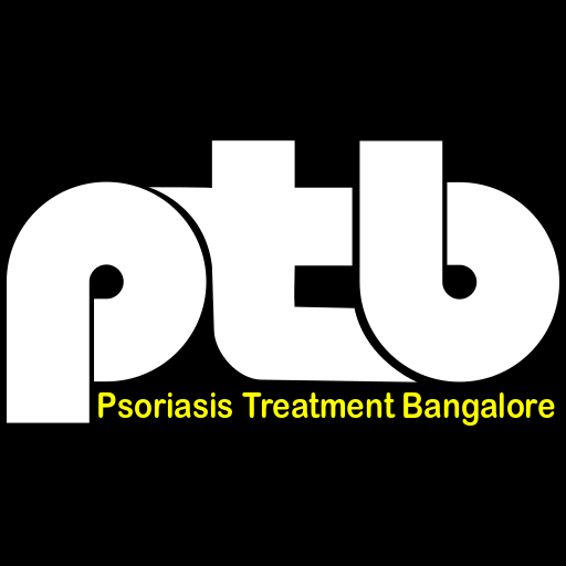 Psoriasis Treatment Bangalore