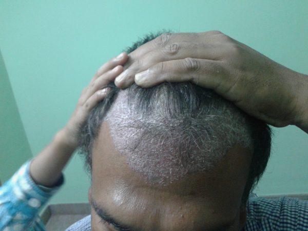 scalp psoriasis medicine in ayurveda