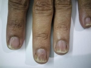 Nail Psoriasis and Ayurvedic Treatment - Psoriasis Treatment Bangalore