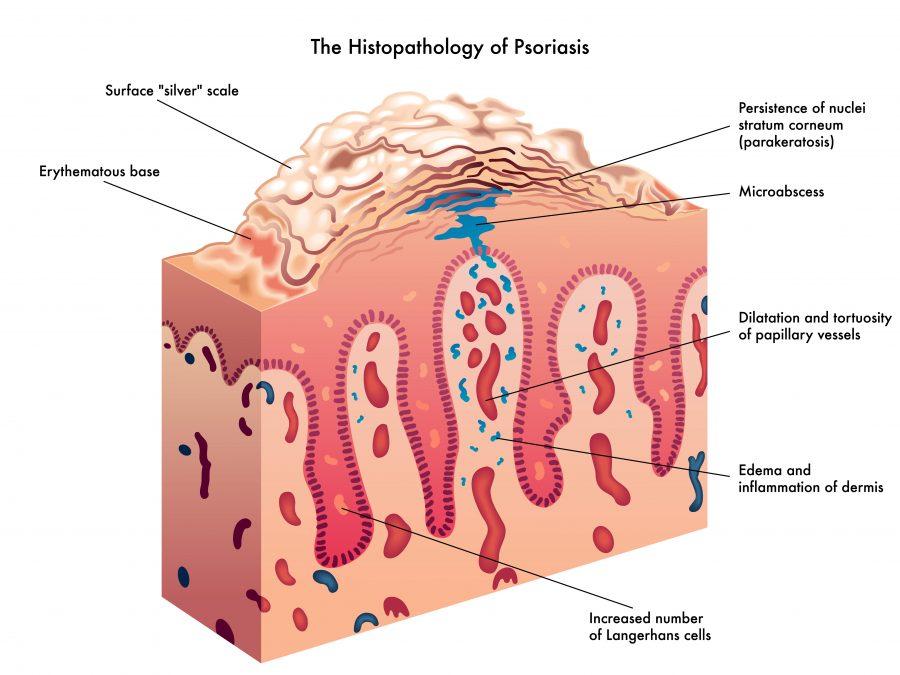 psoriasis mechanism