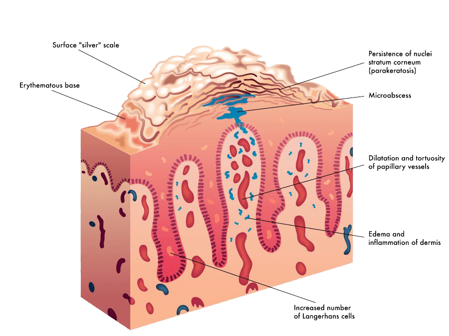 Psoriasis Causes, Symptoms, Types and Treatment