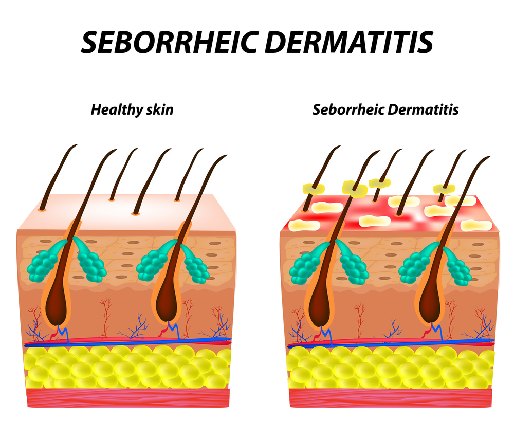 Seborrheic Dermatitis Archives - Psoriasis Treatment Bangalore