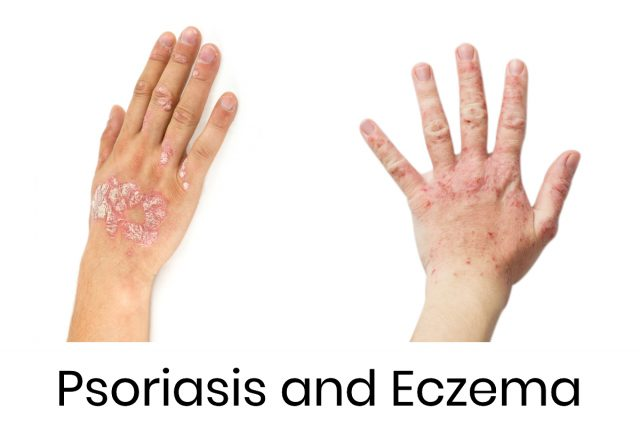 Eczema and Psoriasis