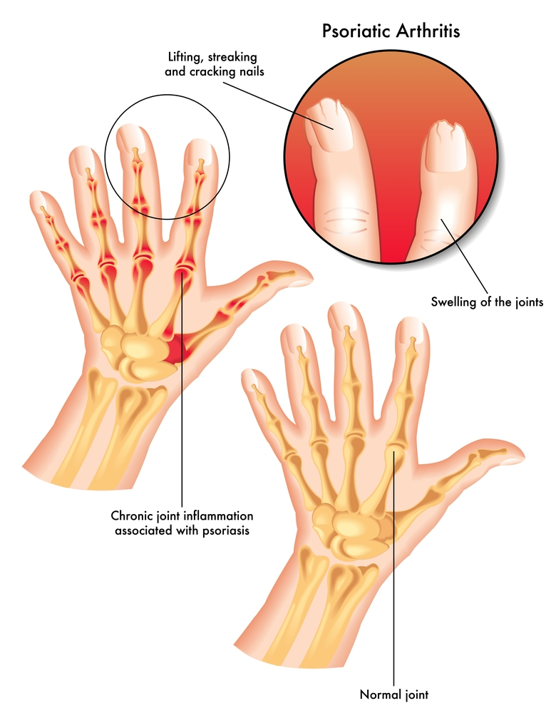 Psoriatic Arthritis and Ayurvedic Treatment