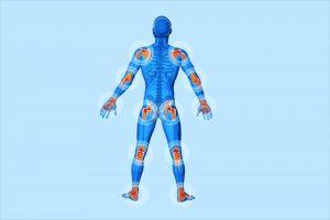 Symptoms of Psoriatic Arthritis