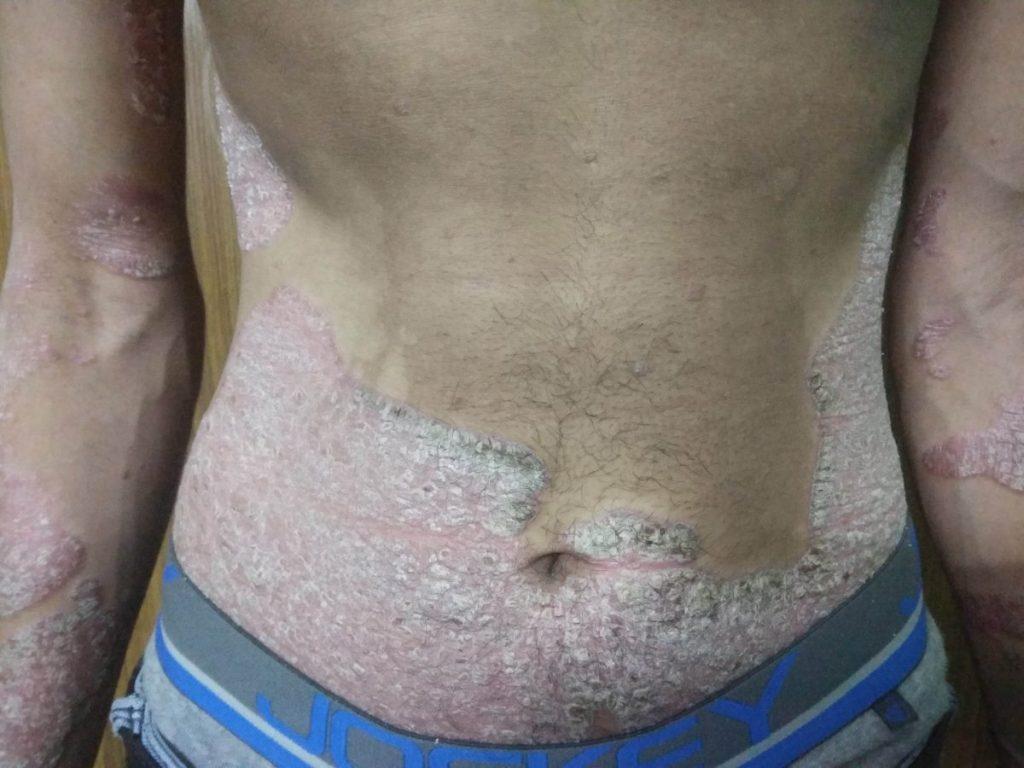 Psoriasis Image
