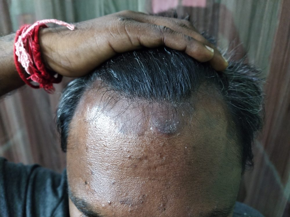 Scalp Psoriasis Ayurvedic Treatment