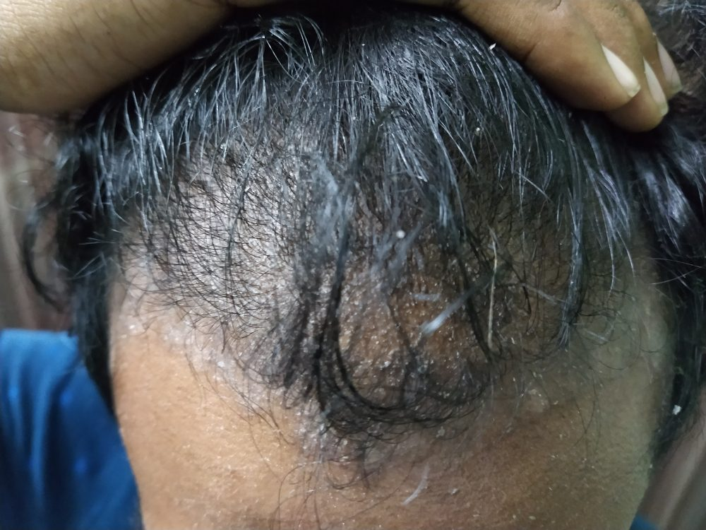 Symptoms od Scalp Psoriasis