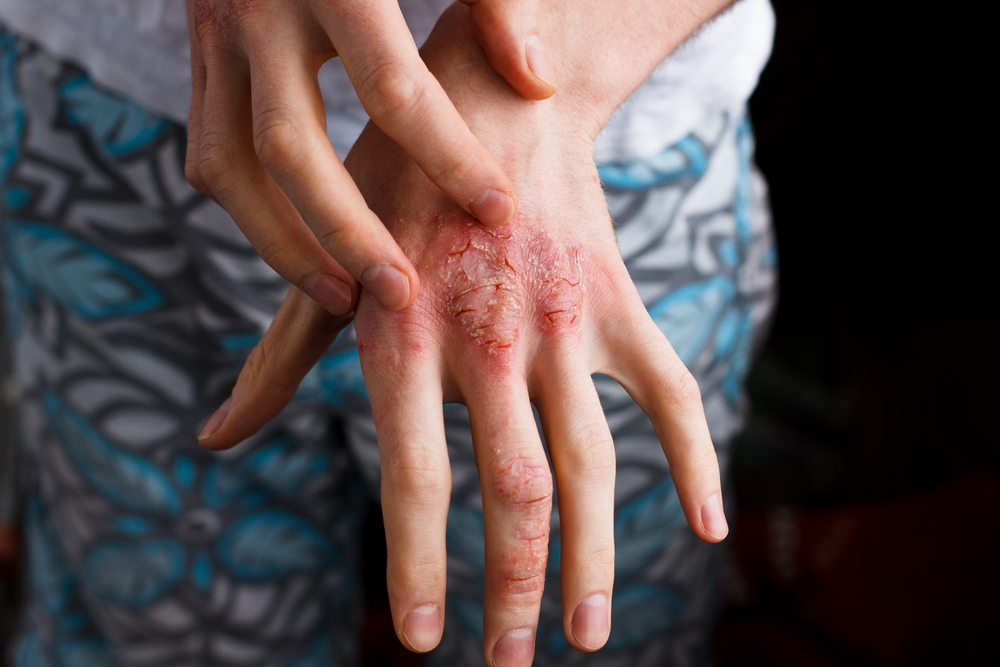Eczema, or atopic dermatitis