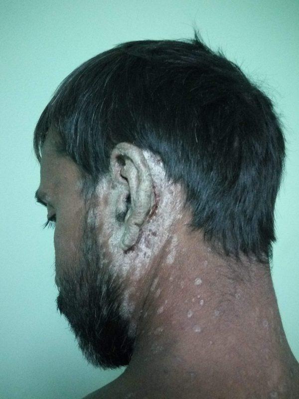 Psoriasis in Ear