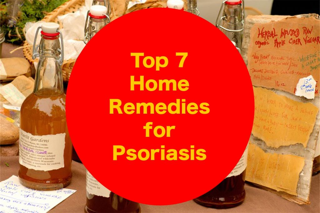 Top 7 Home Remedies for Psoriasis