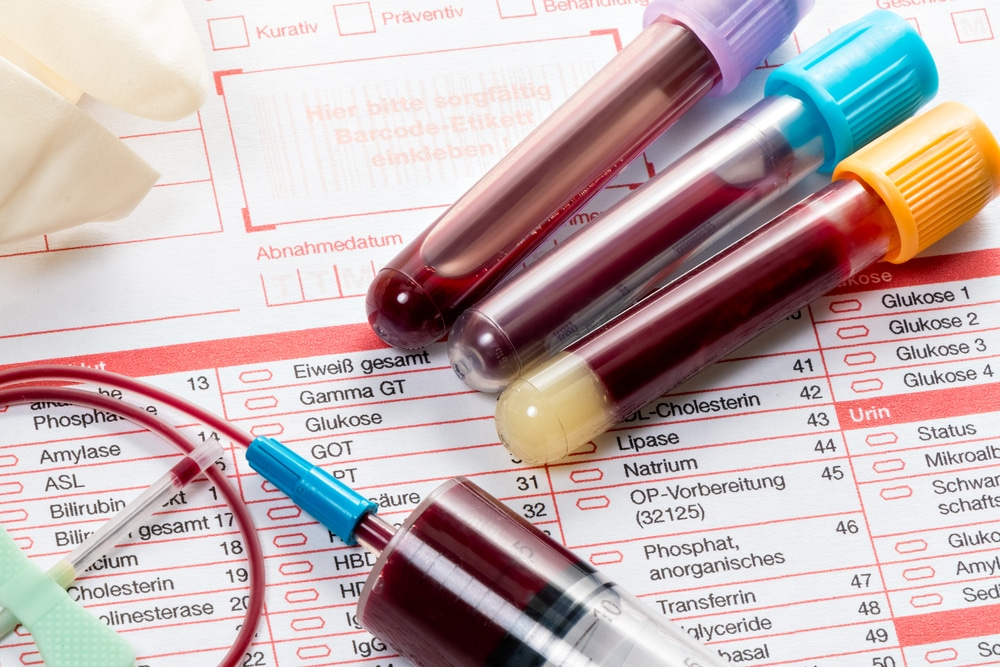 Blood test for Psoriasis