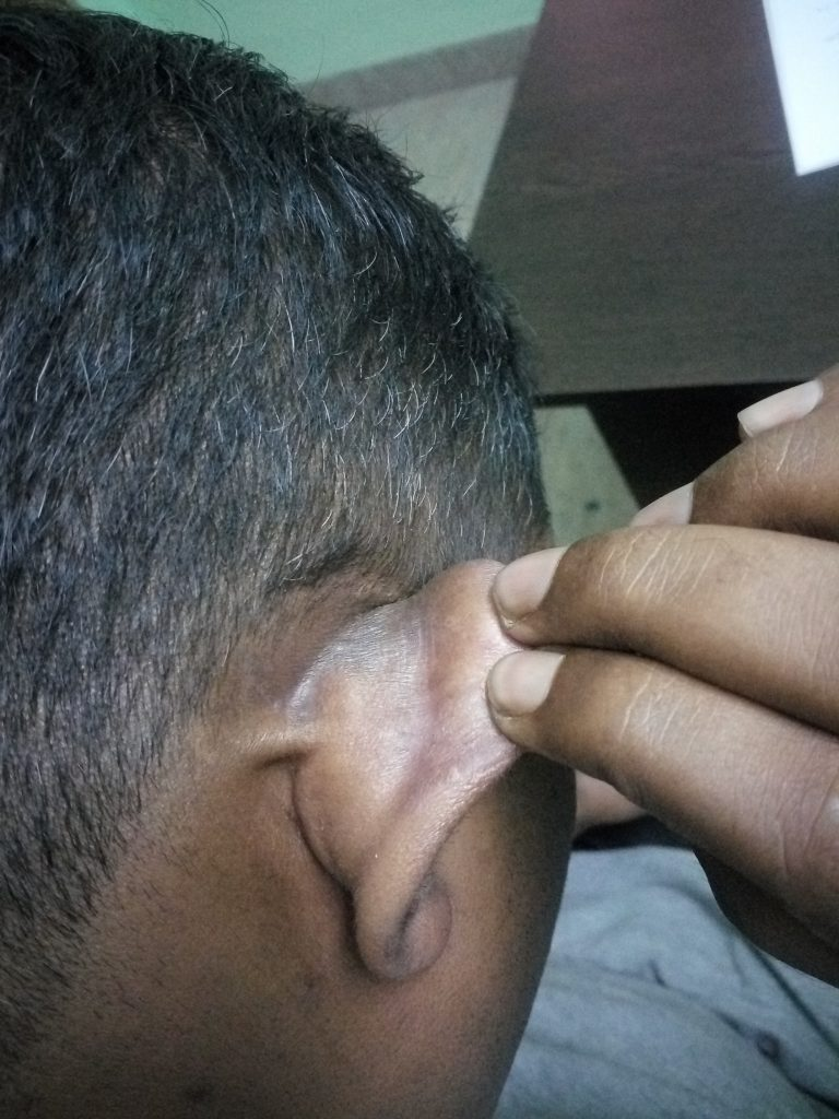 Psoriasis behind the ear treatment