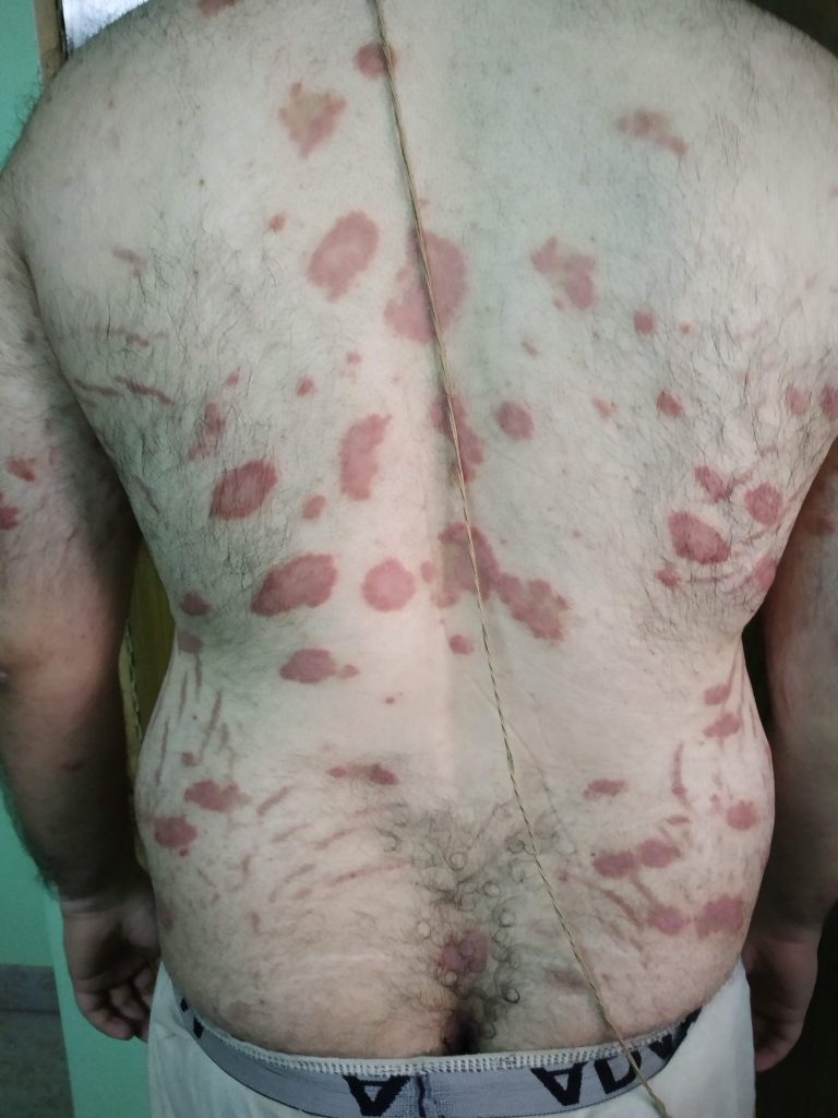 Ayurvedic Psoriasis treatment Case Study