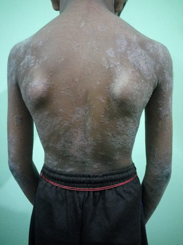 Psoriasis Treatment by Ayurveda