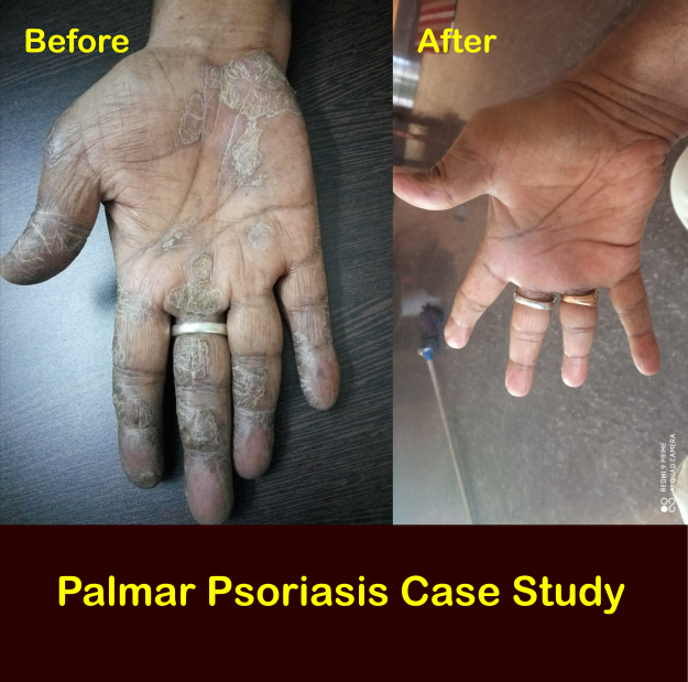 Complete Cure of Palmar Psoriasis Case Study