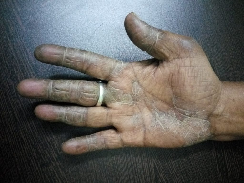 Complete Cure of Palmar Psoriasis