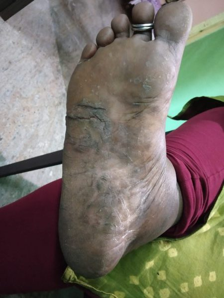Complete cure of Palmoplantar psoriasis by Ayurvedic Treatment