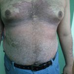 Plaque Psoriasis Images